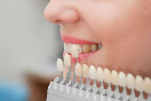 Closeup of woman comparing dental veneers for matching colors with her current teeth.