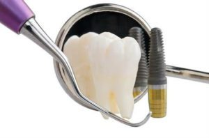 Closeup of what is needed for installing dental implants at Rocky River Dentist.